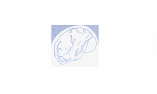 Núcleo de Estudos da Doença Vascular Cerebral