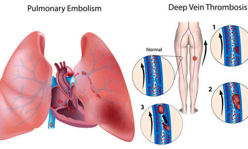 Curso TromboembolismoVenoso e Ecodoppler Venoso dosMembros Inferiores